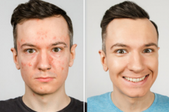 1_before-after1
